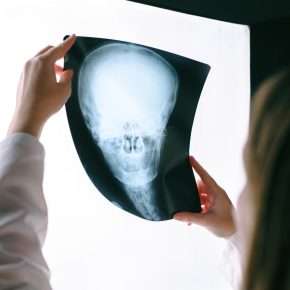 Female doctor looking at x-ray film of human head, woman in medical hospital interior examining xray screening image of skull of a person who is calling a brain injury lawyer toledo