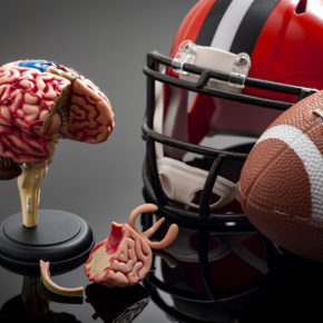 brain injury from high impact sport illustrating CTE, contact our office for a good brain injury lawyer in Ohio.