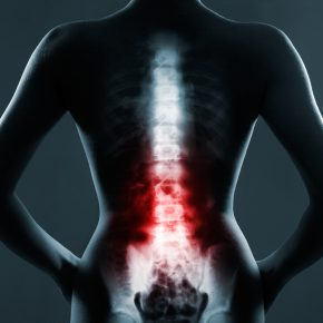 Image of Spinal cord highlighted with xray effect, for guidance with your injury from negligence consult with Bowling Green Medical Malpractice Lawyer.